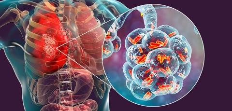 Nontuberculous mycobacteria lung disease