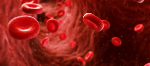 Coronary Artery Disease Sub Service Image