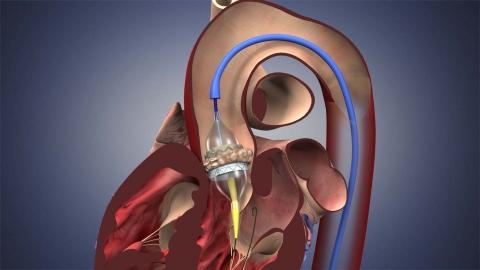 Heart Valve Disease Sub Service Image